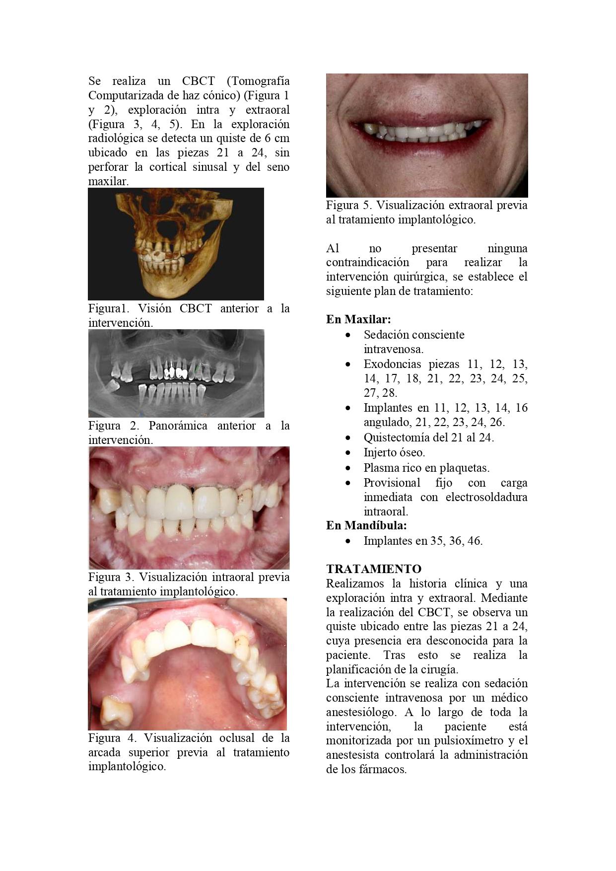 CASO-CLÍNICO-QUISTE-OK_page-0003