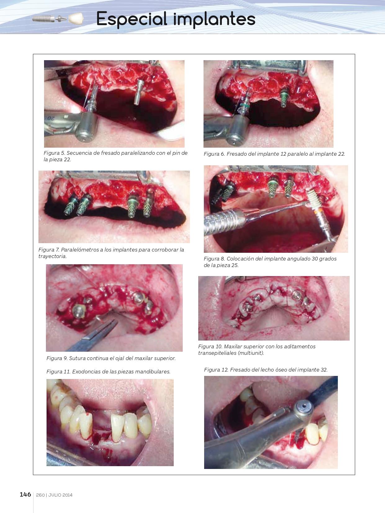 Rehabilitación-completa-maxilar-con-implantes-y-prótesis-de-carga-inmediata-con-electrosoldadura_page-0005