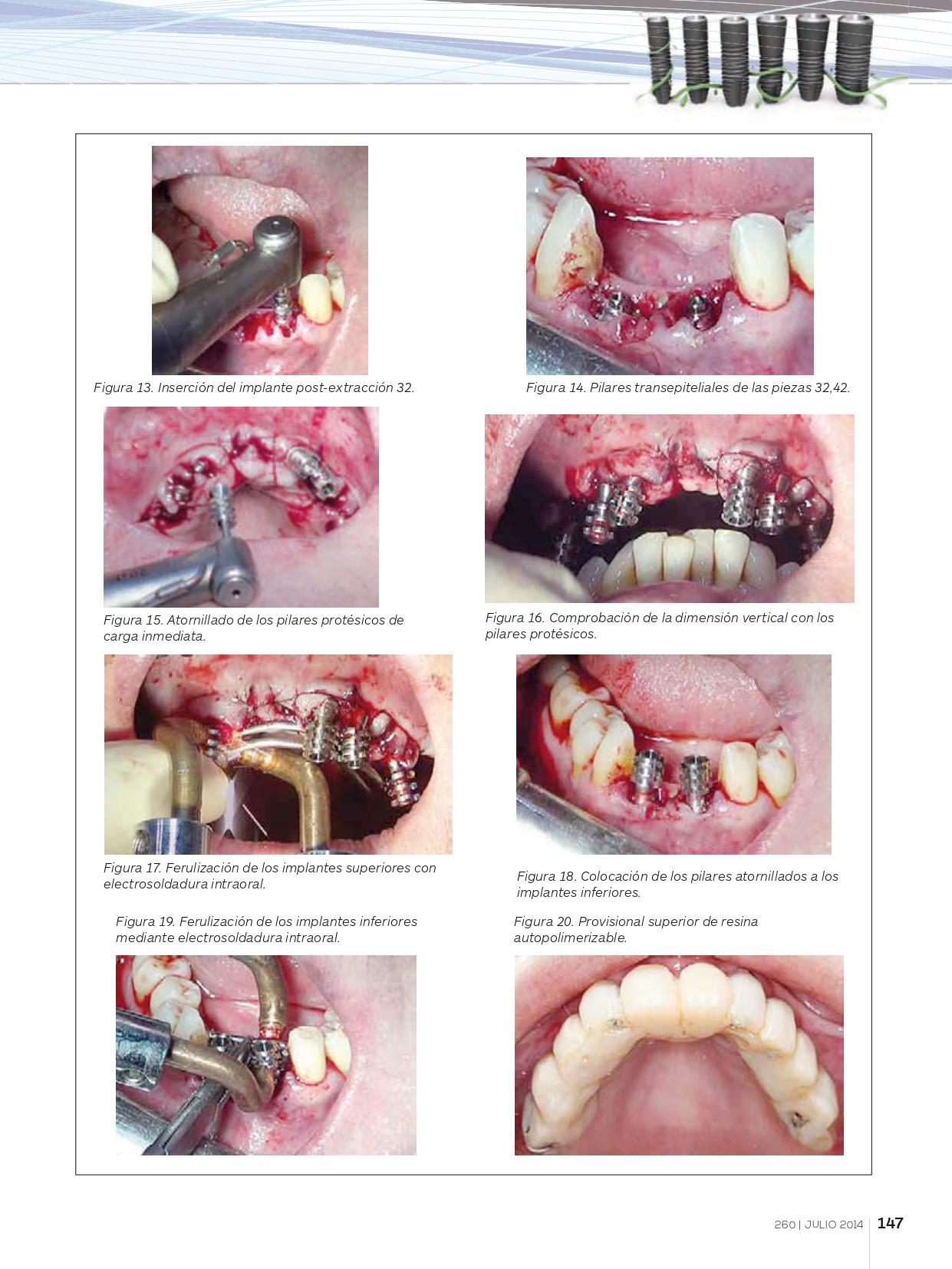 Rehabilitación-completa-maxilar-con-implantes-y-prótesis-de-carga-inmediata-con-electrosoldadura_page-0006