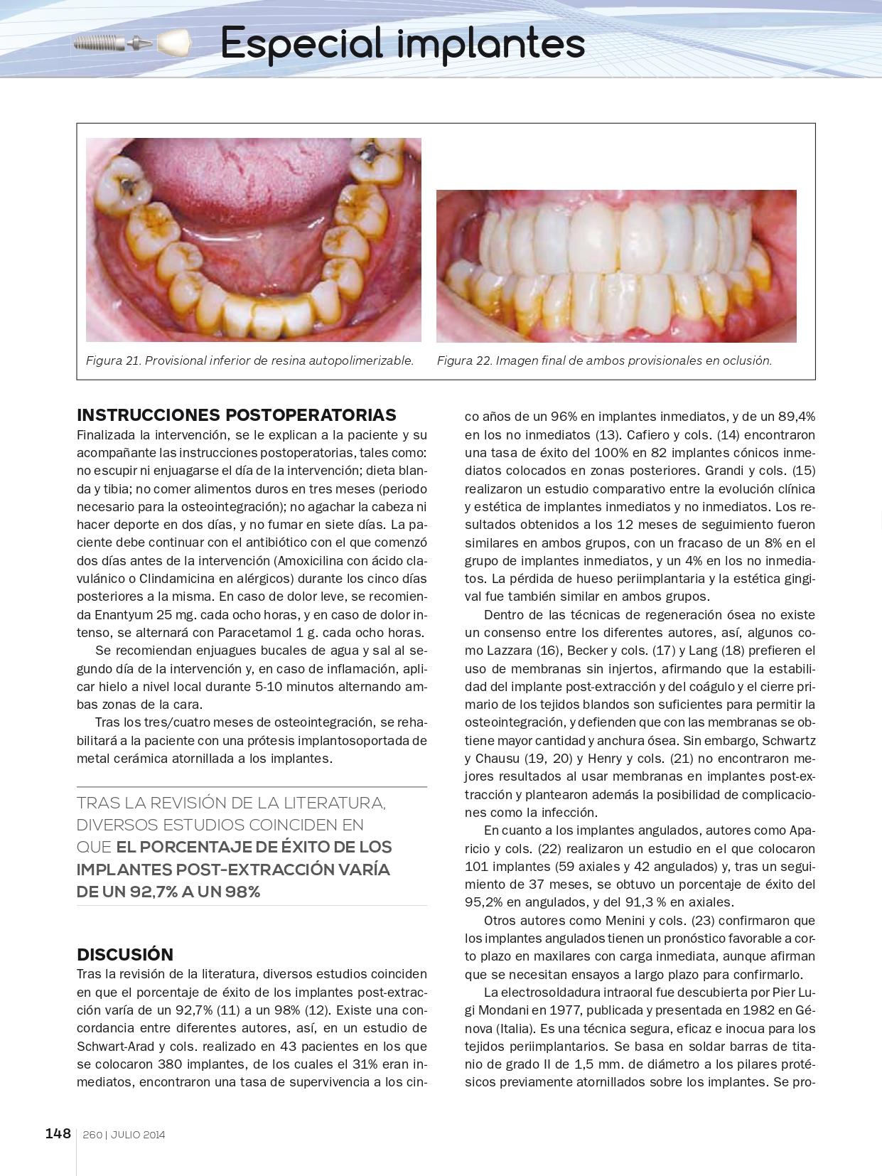Rehabilitación-completa-maxilar-con-implantes-y-prótesis-de-carga-inmediata-con-electrosoldadura_page-0007
