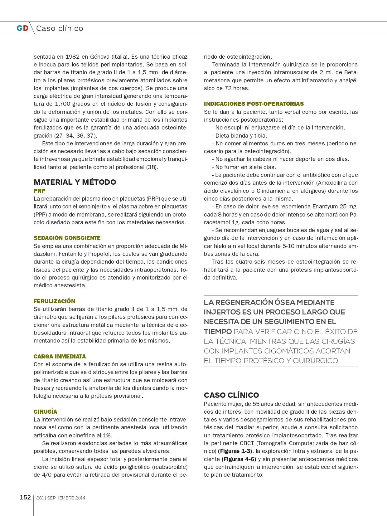 Rehabilitación-del-Maxilar-superior-con-implantes-Cigomáticos_page-0003