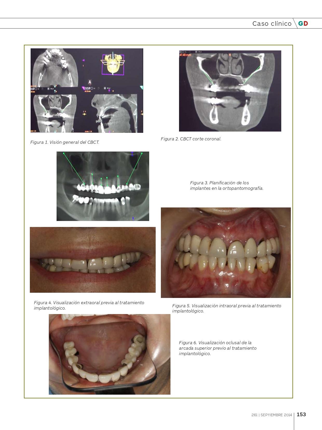 Rehabilitación-del-Maxilar-superior-con-implantes-Cigomáticos_page-0004