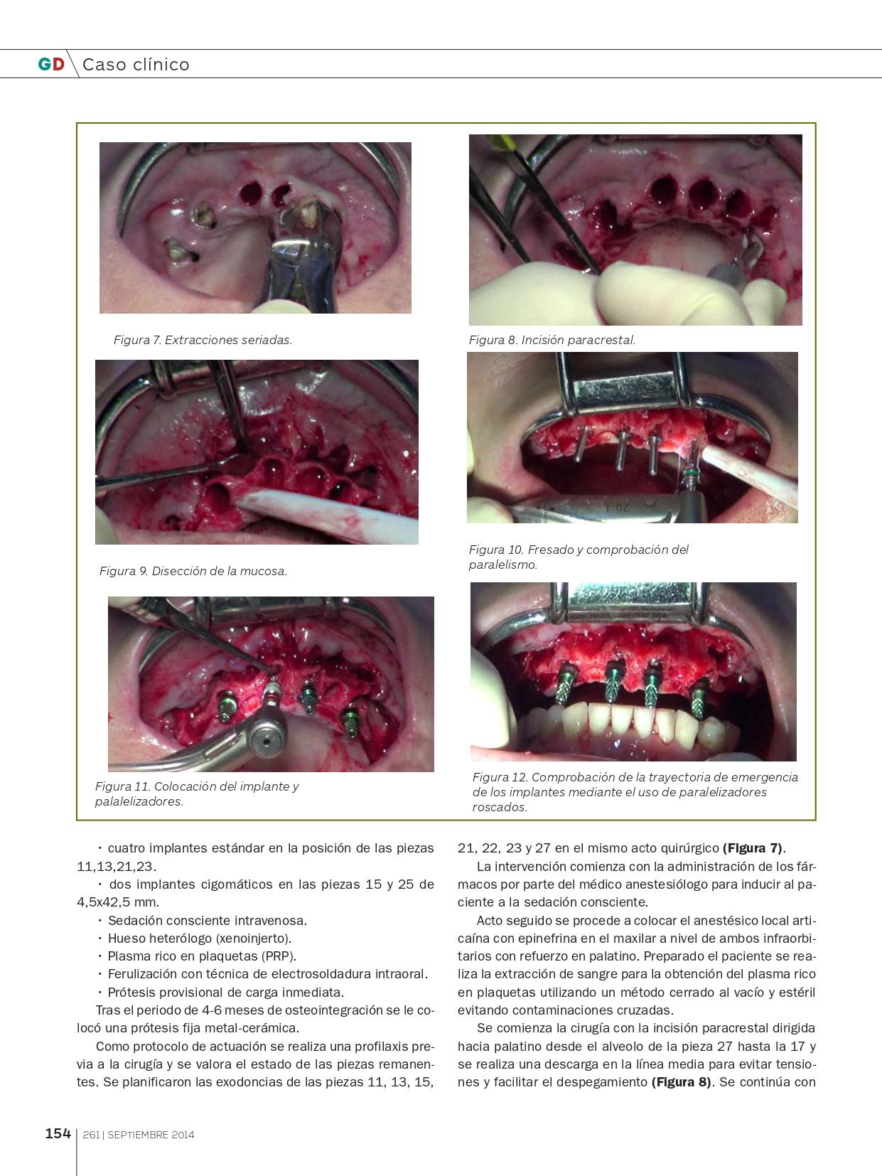Rehabilitación-del-Maxilar-superior-con-implantes-Cigomáticos_page-0005