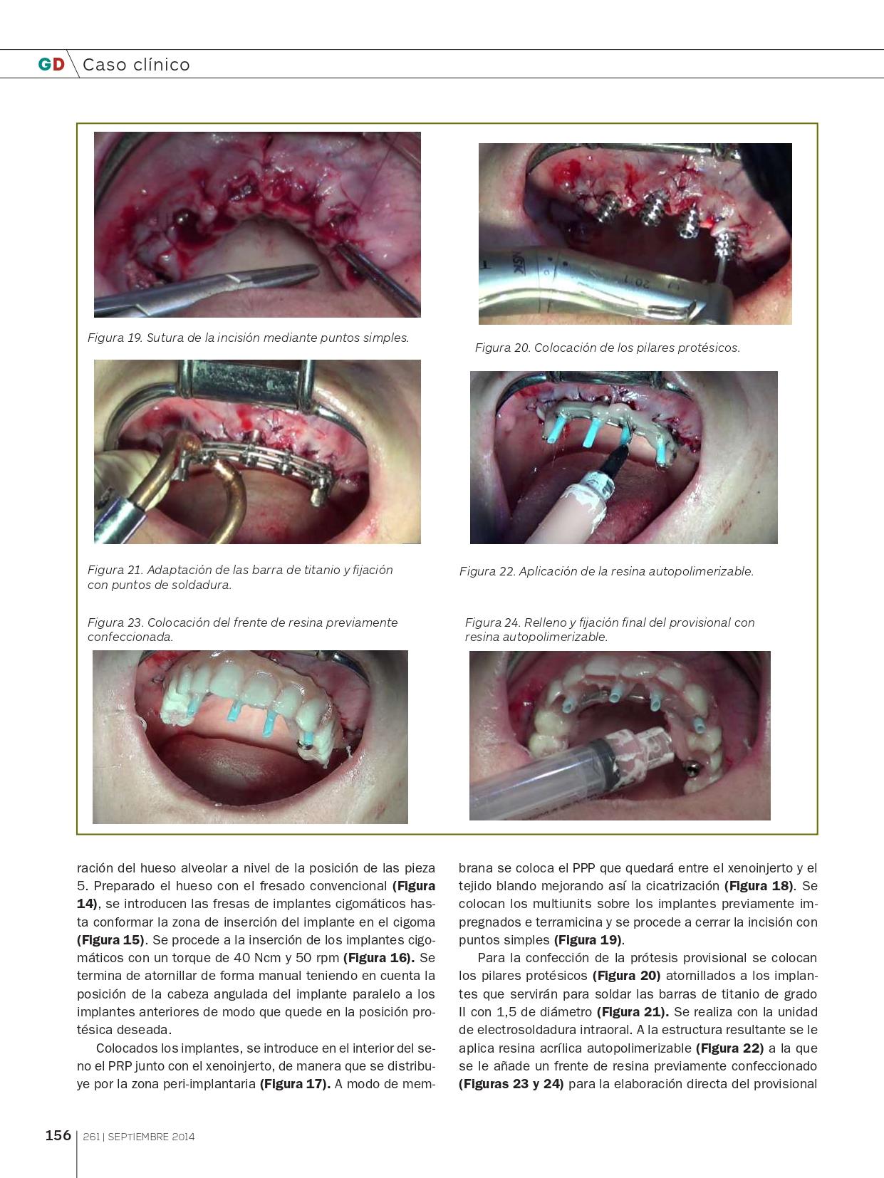 Rehabilitación-del-Maxilar-superior-con-implantes-Cigomáticos_page-0007