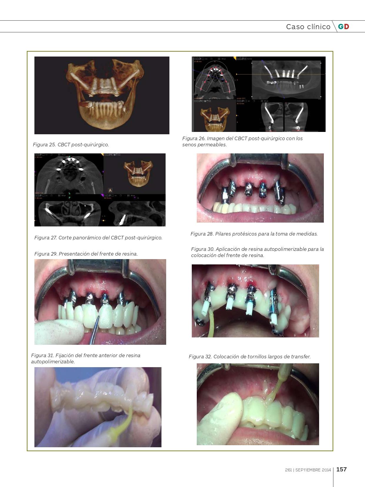 Rehabilitación-del-Maxilar-superior-con-implantes-Cigomáticos_page-0008
