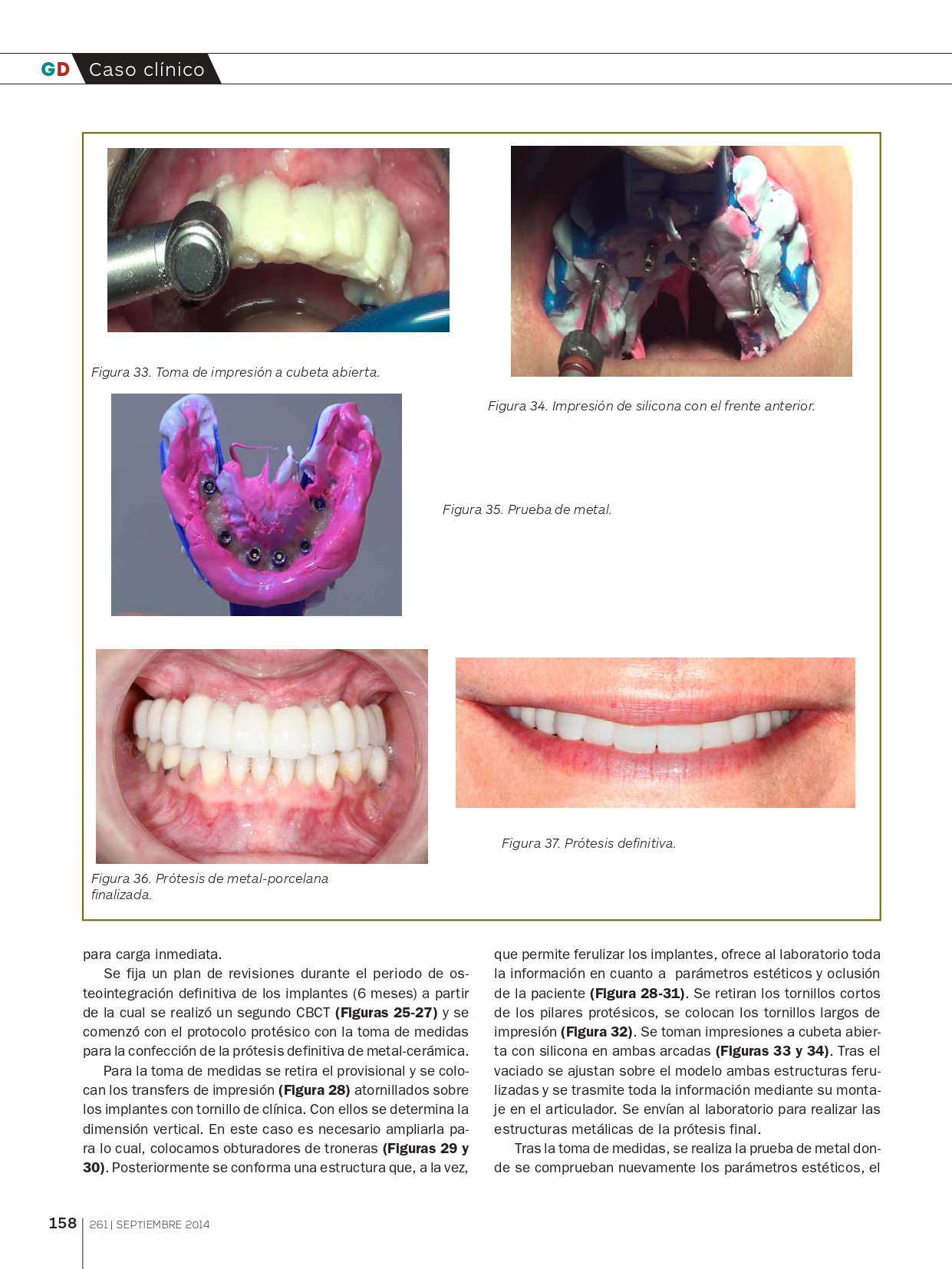 Rehabilitación-del-Maxilar-superior-con-implantes-Cigomáticos_page-0009
