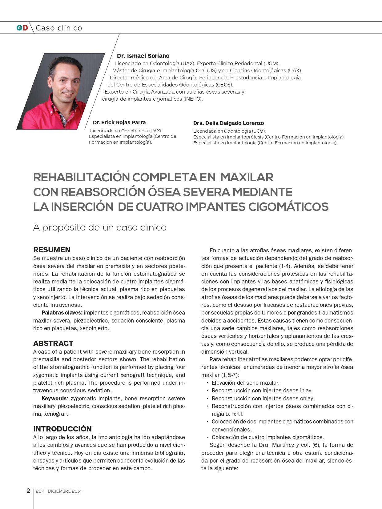 Rehabilitación-maxilar-completa-con-reabsorción-ósea-mediante-4-implantes-cigomáticos_page-0001