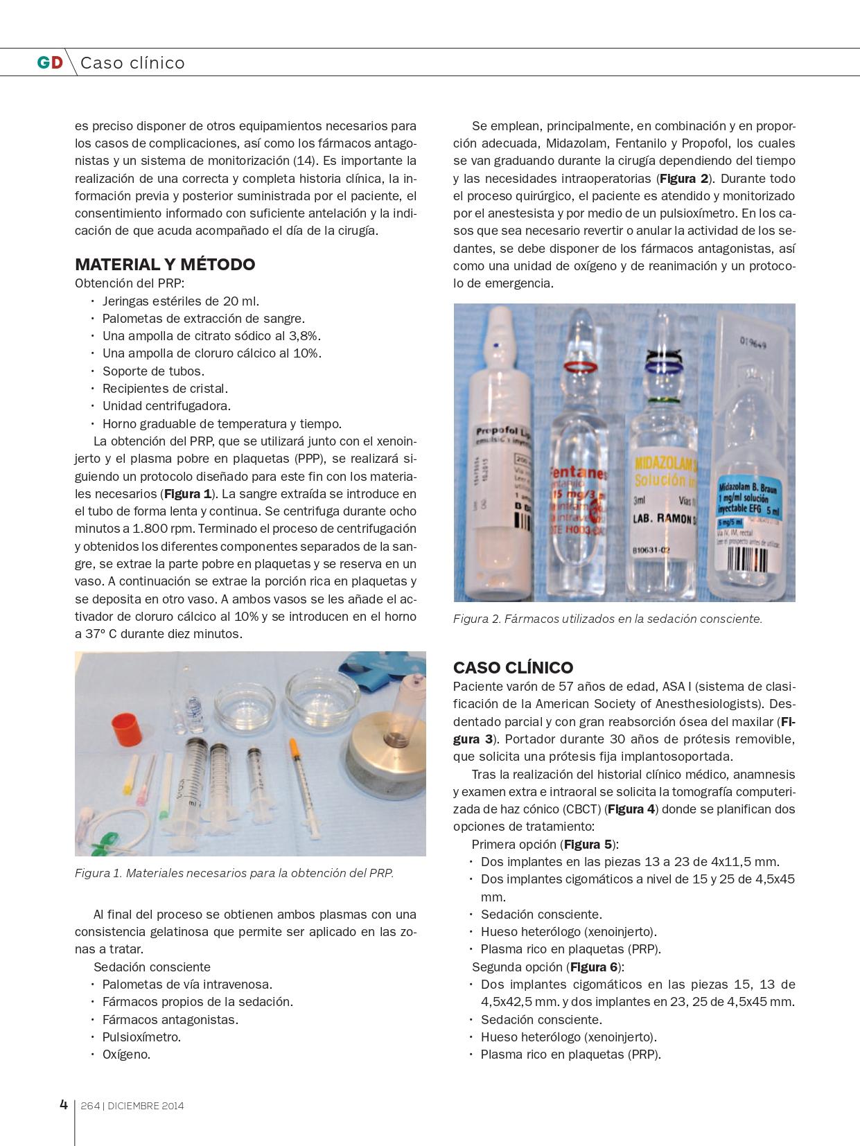 Rehabilitación-maxilar-completa-con-reabsorción-ósea-mediante-4-implantes-cigomáticos_page-0003