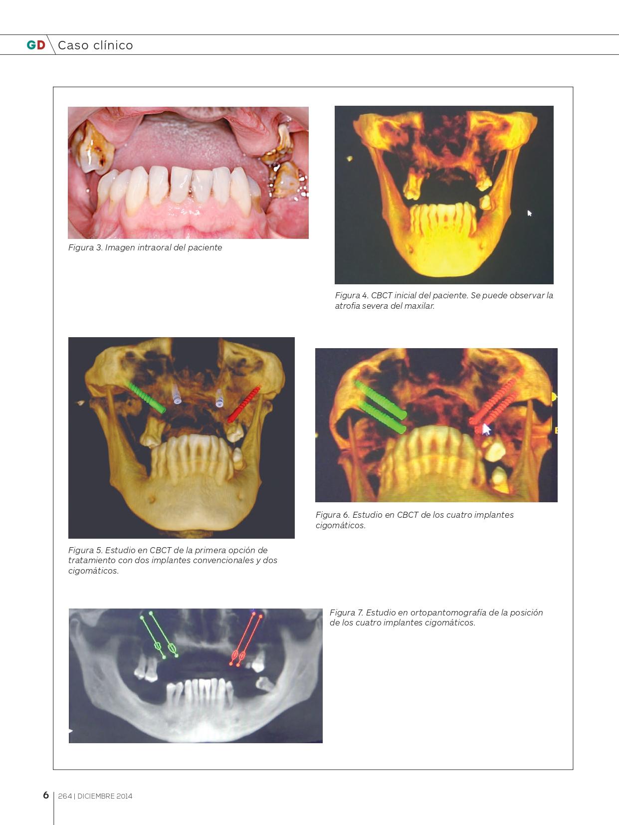 Rehabilitación-maxilar-completa-con-reabsorción-ósea-mediante-4-implantes-cigomáticos_page-0004