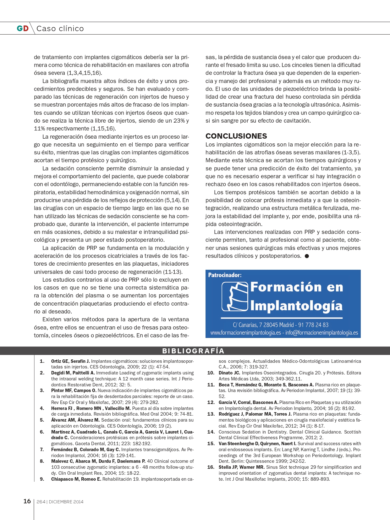 Rehabilitación-maxilar-completa-con-reabsorción-ósea-mediante-4-implantes-cigomáticos_page-0009