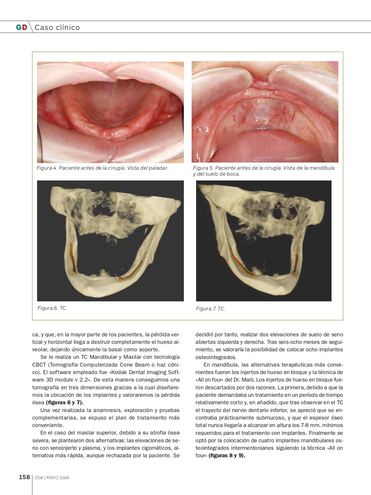 Tratamiento-con-implantes-y-elevación-de-seno-abierta_page-0003