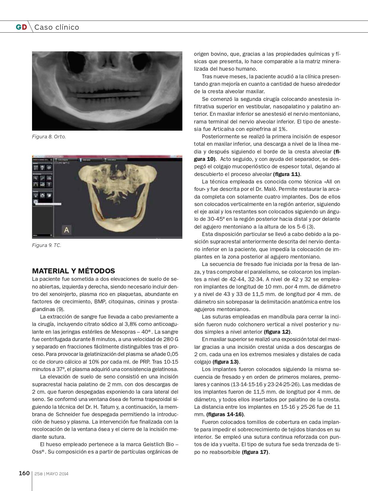 Tratamiento-con-implantes-y-elevación-de-seno-abierta_page-0005