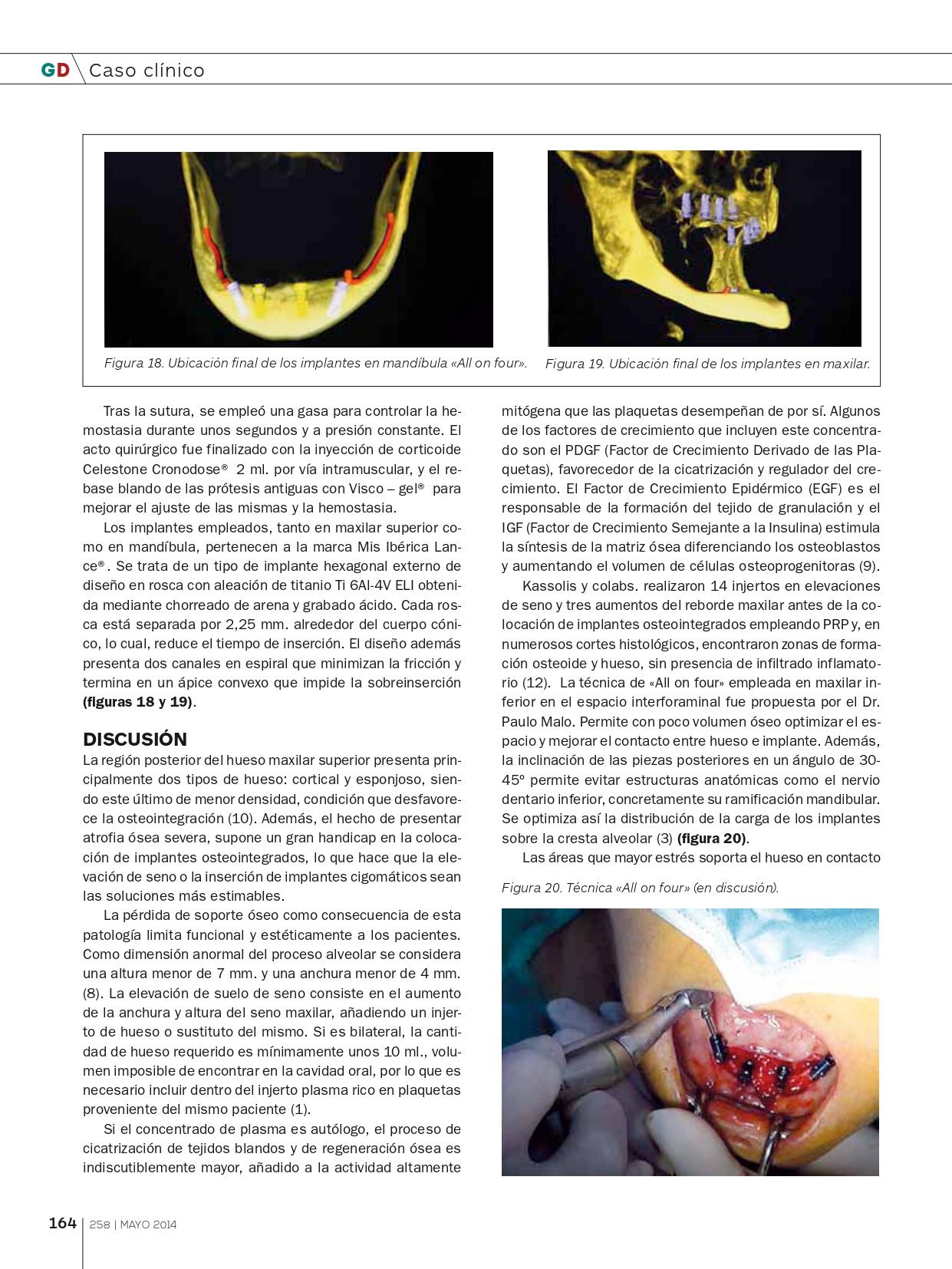 Tratamiento-con-implantes-y-elevación-de-seno-abierta_page-0007